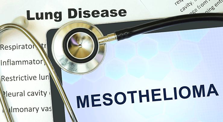 Receiving a mesothelioma diagnosis is devastating. iStock.com/designer491